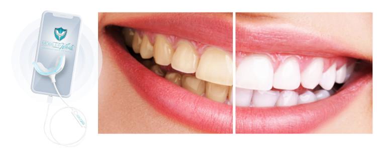 Combien ça coûte et où acheter Mobile White Teeth Whitening?